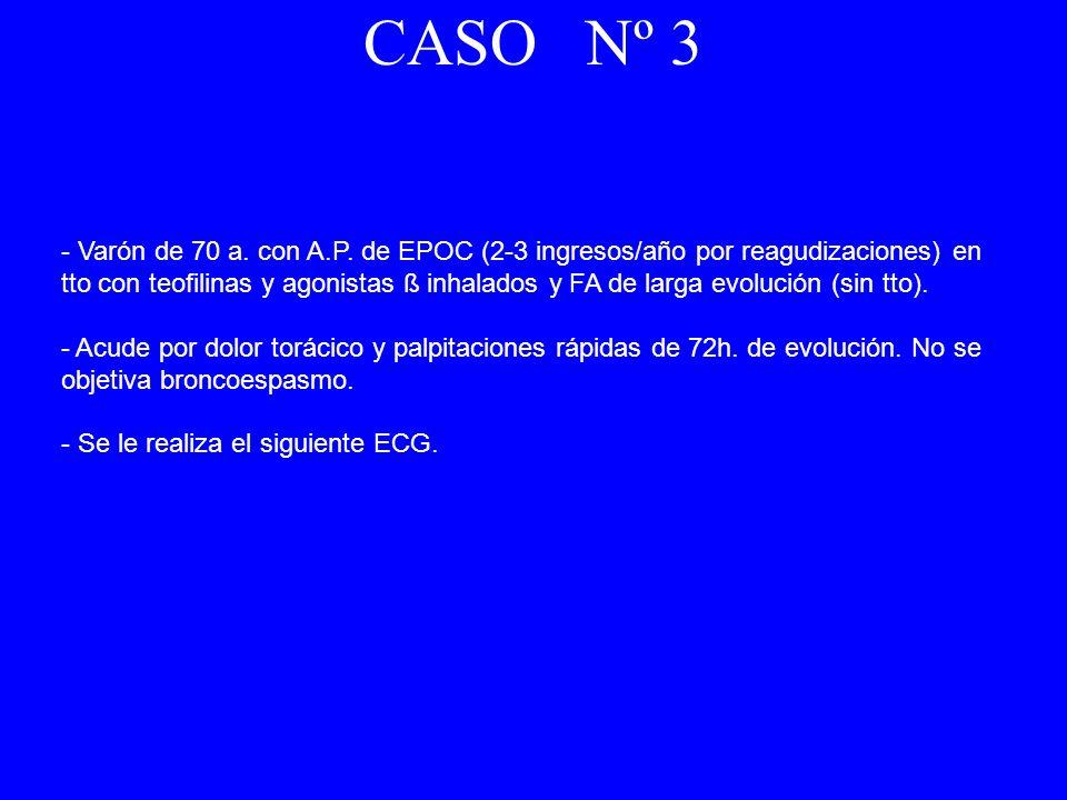 - Varón de 70 a. con A.P. de EPOC (2-3 ingresos/año por reagudizaciones) en tto con teofilinas y agonistas ß inhalados y FA de larga evolución (sin tt