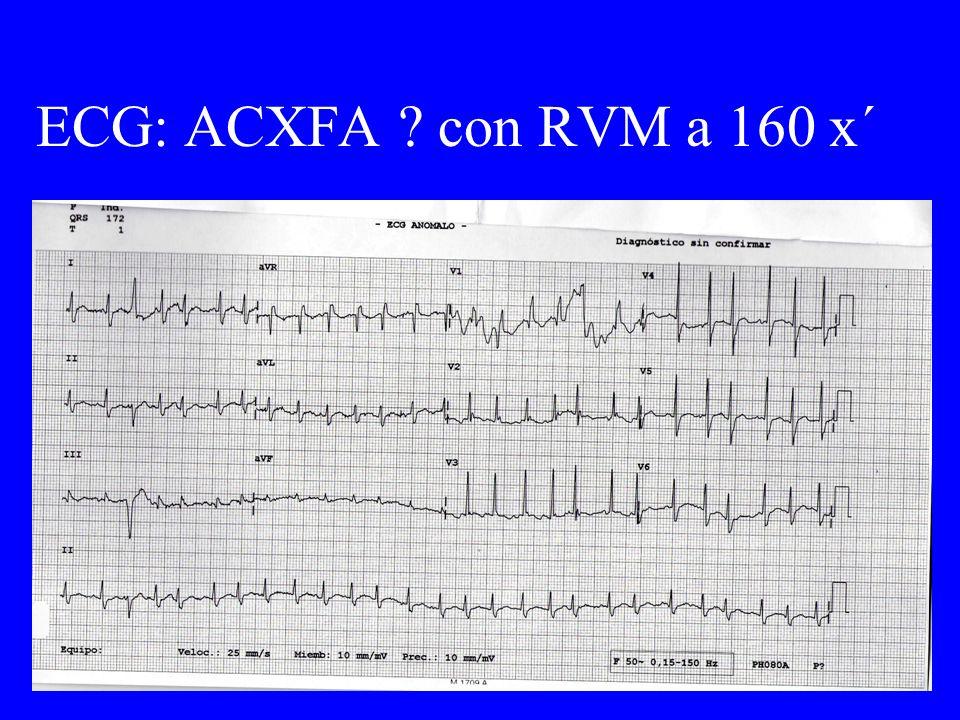 ECG: ACXFA ? con RVM a 160 x´