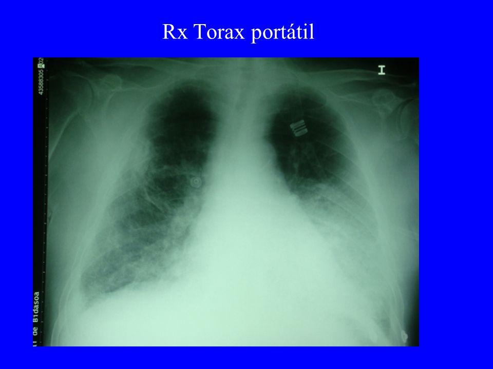 Rx Torax portátil
