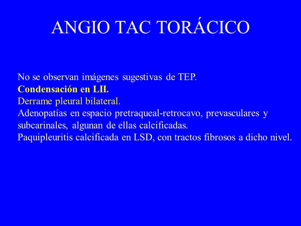 No se observan imágenes sugestivas de TEP. Condensación en LII. Derrame pleural bilateral. Adenopatías en espacio pretraqueal-retrocavo, prevasculares