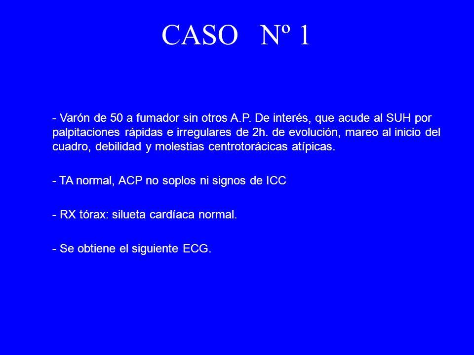 CASO Nº 1 - Varón de 50 a fumador sin otros A.P. De interés, que acude al SUH por palpitaciones rápidas e irregulares de 2h. de evolución, mareo al in