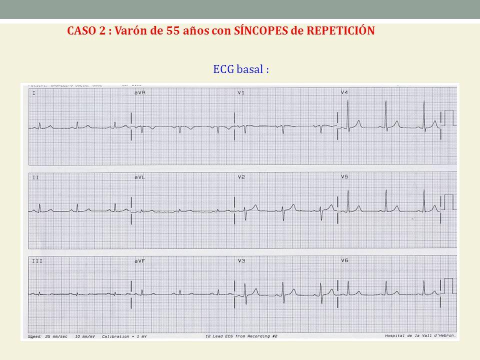ECG basal : CASO 2 : Varón de 55 años con SÍNCOPES de REPETICIÓN