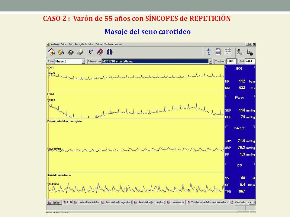 Masaje del seno carotideo CASO 2 : Varón de 55 años con SÍNCOPES de REPETICIÓN