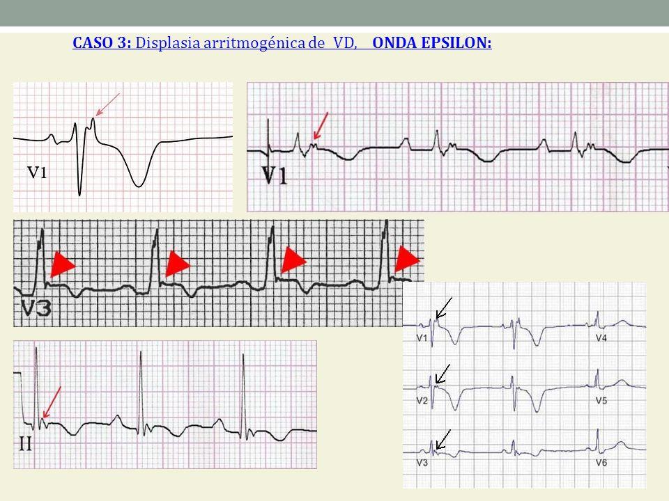 CASO 3: Displasia arritmogénica de VD, ONDA EPSILON: