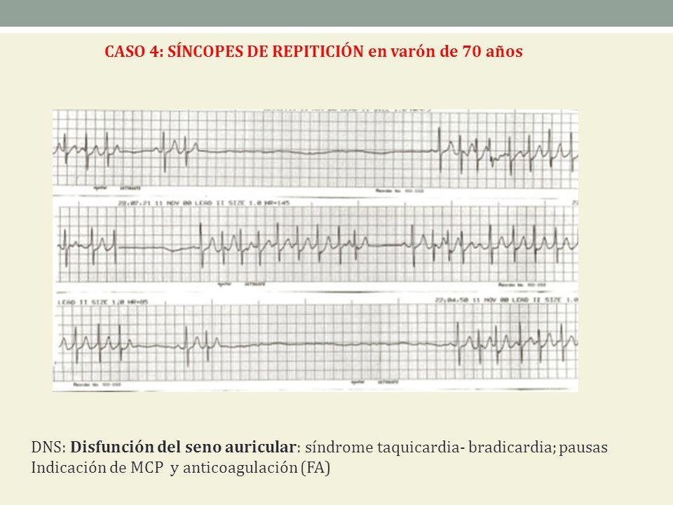 CASO 4: SÍNCOPES DE REPITICIÓN en varón de 70 años DNS: Disfunción del seno auricular: síndrome taquicardia- bradicardia; pausas Indicación de MCP y a