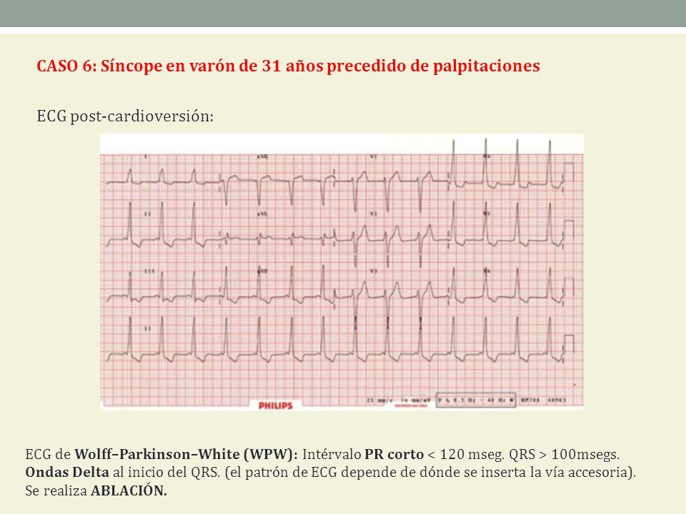 CASO 6: Síncope en varón de 31 años precedido de palpitaciones ECG post-cardioversión: ECG de Wolff–Parkinson–White (WPW): Intérvalo PR corto 100msegs