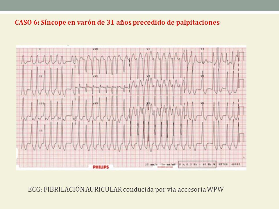 CASO 6: Síncope en varón de 31 años precedido de palpitaciones ECG: FIBRILACIÓN AURICULAR conducida por vía accesoria WPW