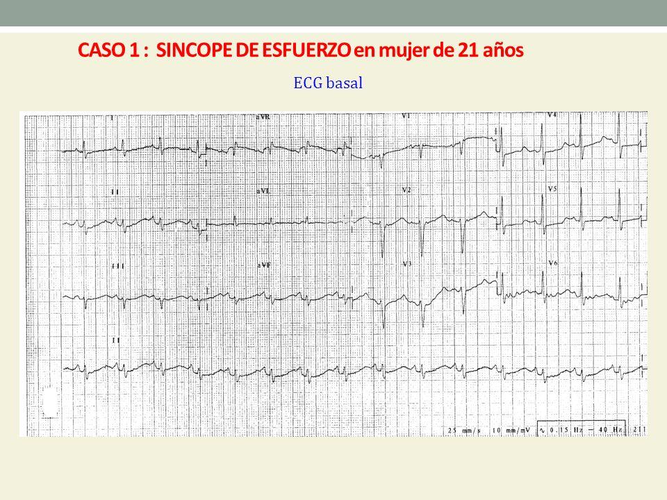 Exploración física - Buen estado general - Todos los pulsos presentes y simétricos - No soplos - Presión arterial basal : 130/70 mm Hg - Presión arterial en ortostatismo: 120/60 mm Hg CASO 2 : Varón de 55 años con SÍNCOPES de REPETICIÓN
