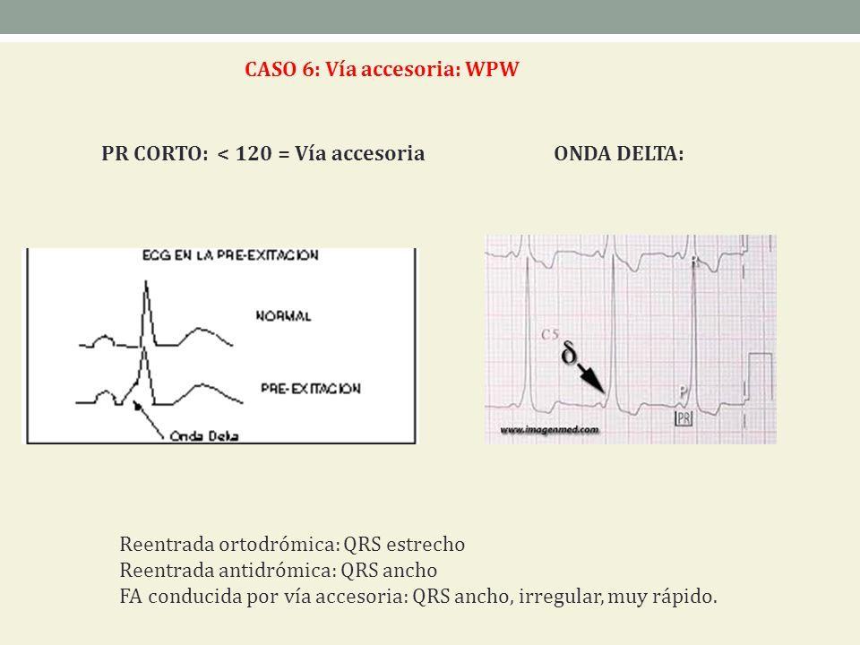 CASO 6: Vía accesoria: WPW PR CORTO: < 120 = Vía accesoria ONDA DELTA: Reentrada ortodrómica: QRS estrecho Reentrada antidrómica: QRS ancho FA conduci