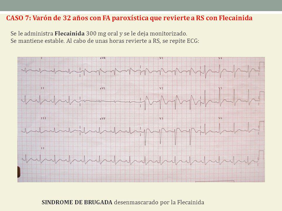 CASO 7: Varón de 32 años con FA paroxística que revierte a RS con Flecainida Se le administra Flecainida 300 mg oral y se le deja monitorizado. Se man