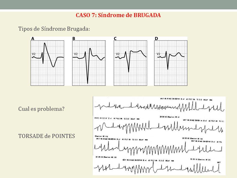 CASO 7: Síndrome de BRUGADA Tipos de Síndrome Brugada: Cual es problema? TORSADE de POINTES