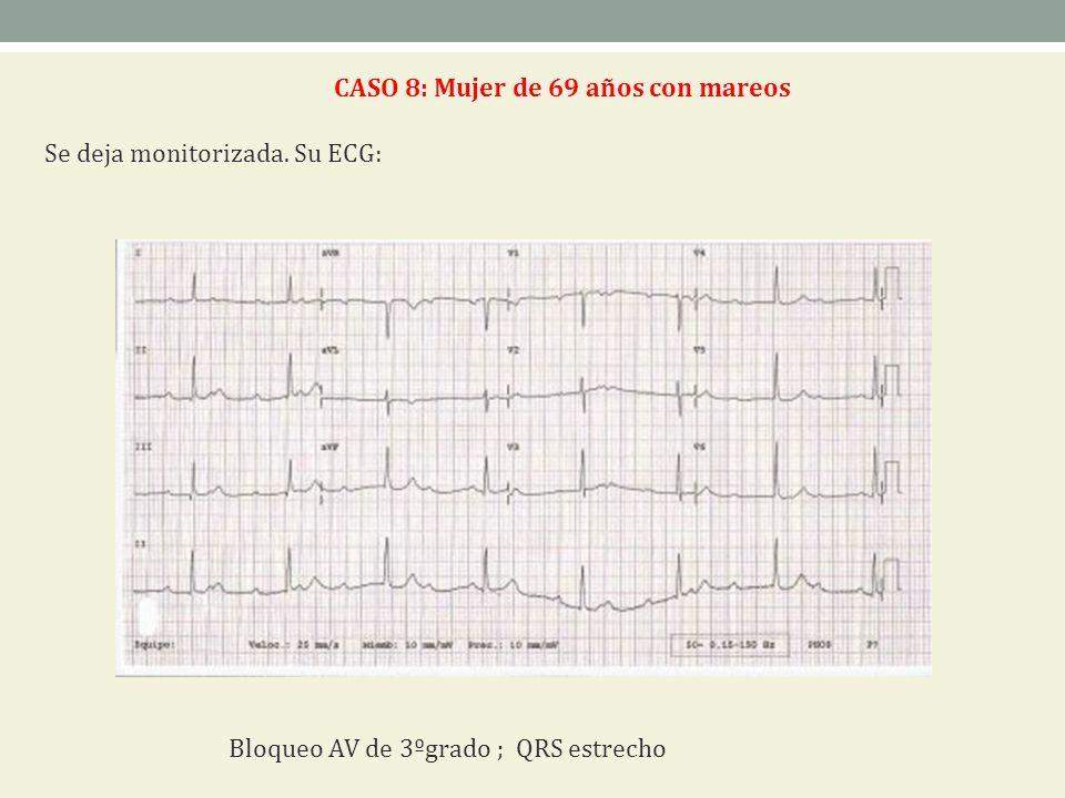 CASO 8: Mujer de 69 años con mareos Se deja monitorizada. Su ECG: Bloqueo AV de 3ºgrado ; QRS estrecho