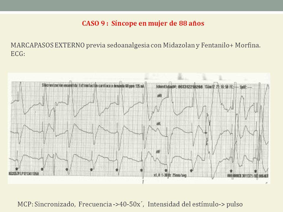 CASO 9 : Síncope en mujer de 88 años MARCAPASOS EXTERNO previa sedoanalgesia con Midazolan y Fentanilo+ Morfina. ECG: MCP: Sincronizado, Frecuencia ->