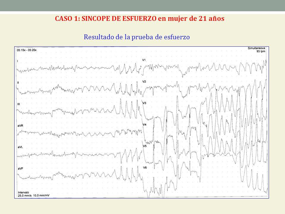 Resultado de la prueba de esfuerzo CASO 1: SINCOPE DE ESFUERZO en mujer de 21 años