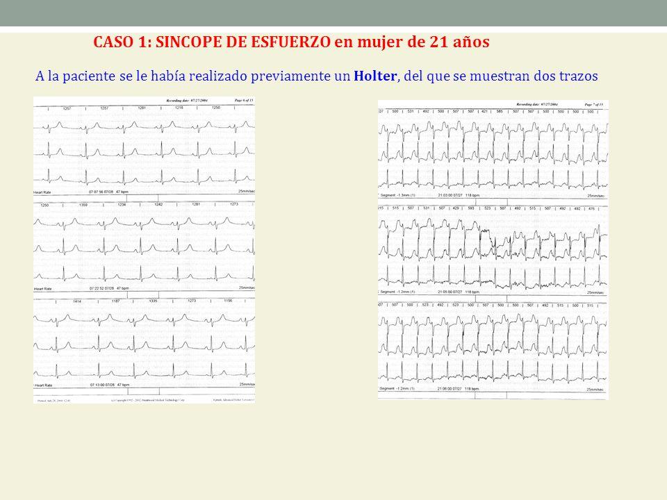 A la paciente se le había realizado previamente un Holter, del que se muestran dos trazos CASO 1: SINCOPE DE ESFUERZO en mujer de 21 años