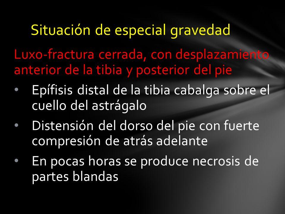 Luxo-fractura cerrada, con desplazamiento anterior de la tibia y posterior del pie Epífisis distal de la tibia cabalga sobre el cuello del astrágalo D