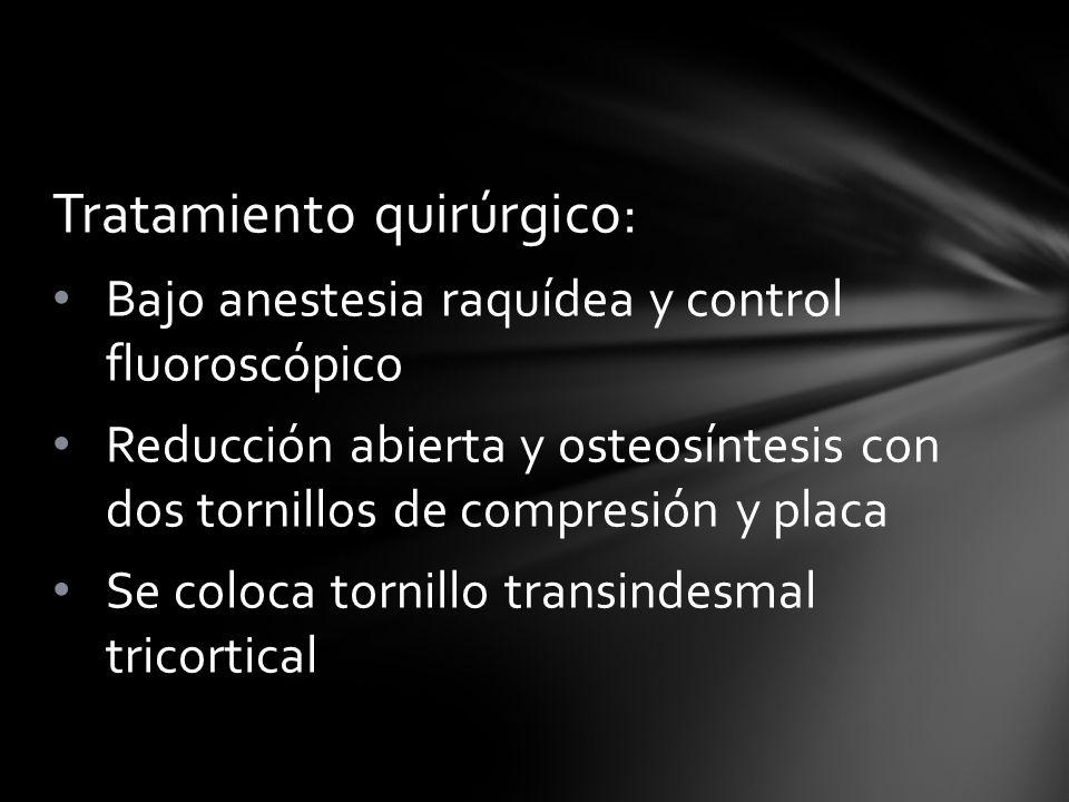 Tratamiento quirúrgico: Bajo anestesia raquídea y control fluoroscópico Reducción abierta y osteosíntesis con dos tornillos de compresión y placa Se c