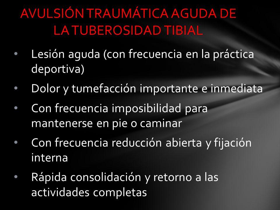 Lesión aguda (con frecuencia en la práctica deportiva) Dolor y tumefacción importante e inmediata Con frecuencia imposibilidad para mantenerse en pie
