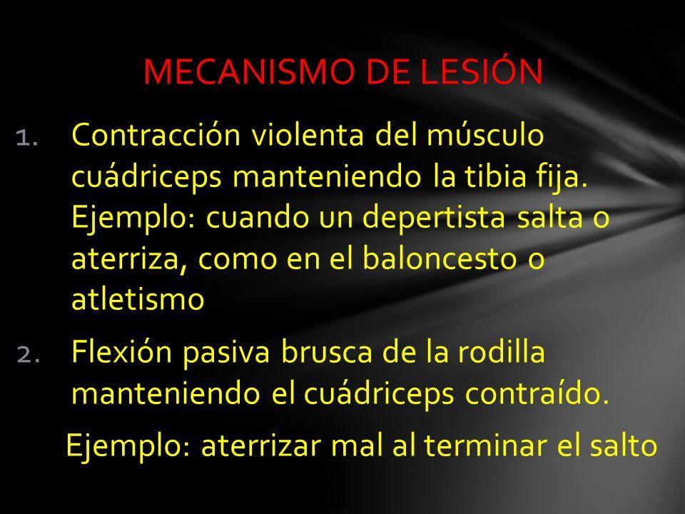 1.Contracción violenta del músculo cuádriceps manteniendo la tibia fija. Ejempl0: cuando un depertista salta o aterriza, como en el baloncesto o atlet