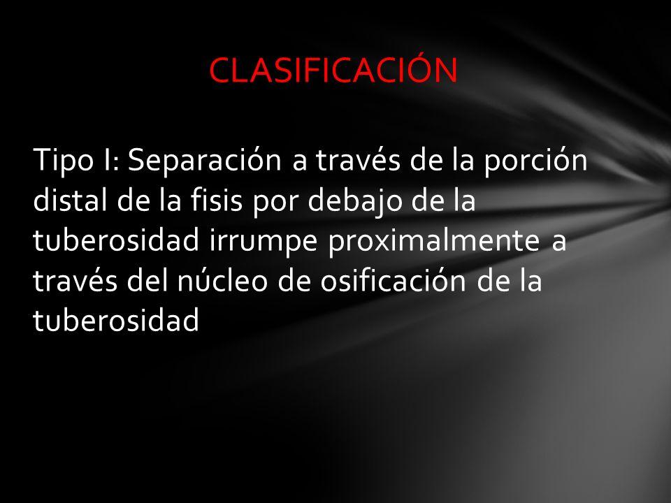 Tipo I: Separación a través de la porción distal de la fisis por debajo de la tuberosidad irrumpe proximalmente a través del núcleo de osificación de