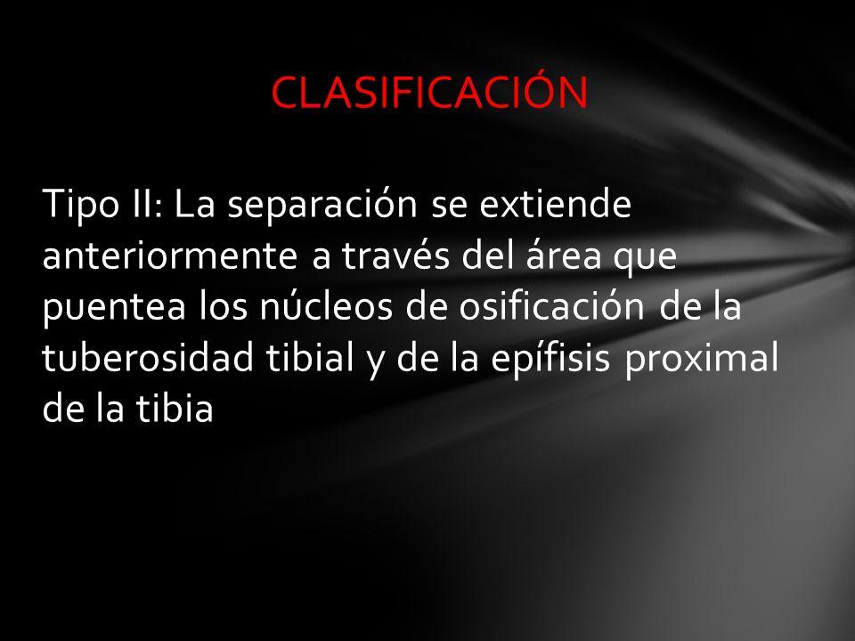 Tipo II: La separación se extiende anteriormente a través del área que puentea los núcleos de osificación de la tuberosidad tibial y de la epífisis pr