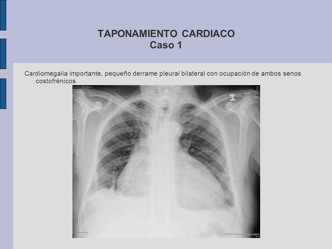 TAPONAMIENTO CARDIACO Caso 1 Cardiomegalia importante, pequeño derrame pleural bilateral con ocupación de ambos senos costofrénicos