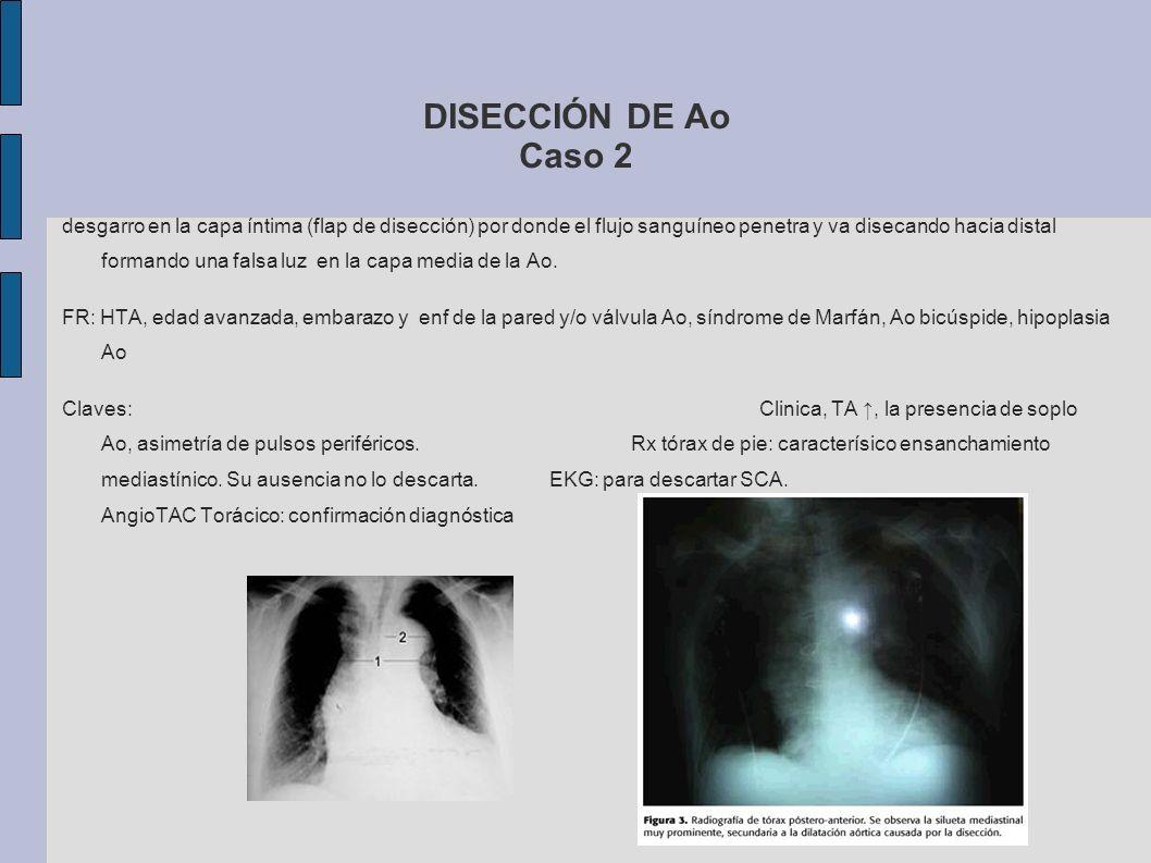 DISECCIÓN DE Ao Caso 2 tipo A = tto Qx + tipo B = tto médico el objetivo en urgencias es el control del dolor y de la TA con PAS a 100-120 mmHg si tolerada: MORFINA: analgésico y vasodilatador.
