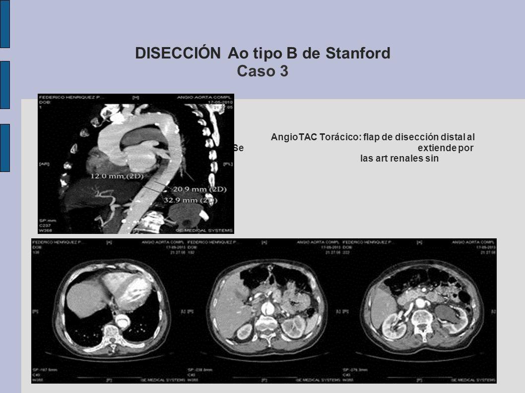 DISECCIÓN Ao tipo B de Stanford Caso 3 AngioTAC Torácico: flap de disección distal al origen de la arteria subclavia izquierda. Se extiende por Ao abd