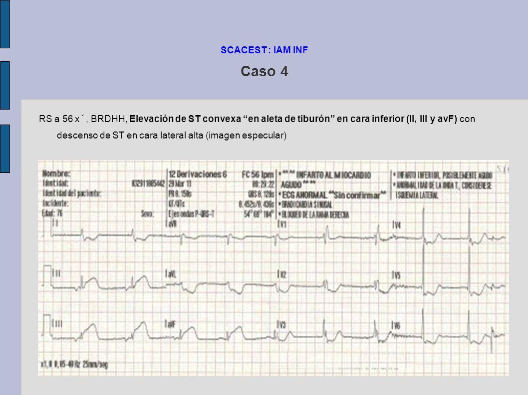 SCACEST : IAM INF Caso 4 Al Hospital llega sin dolor torácico.