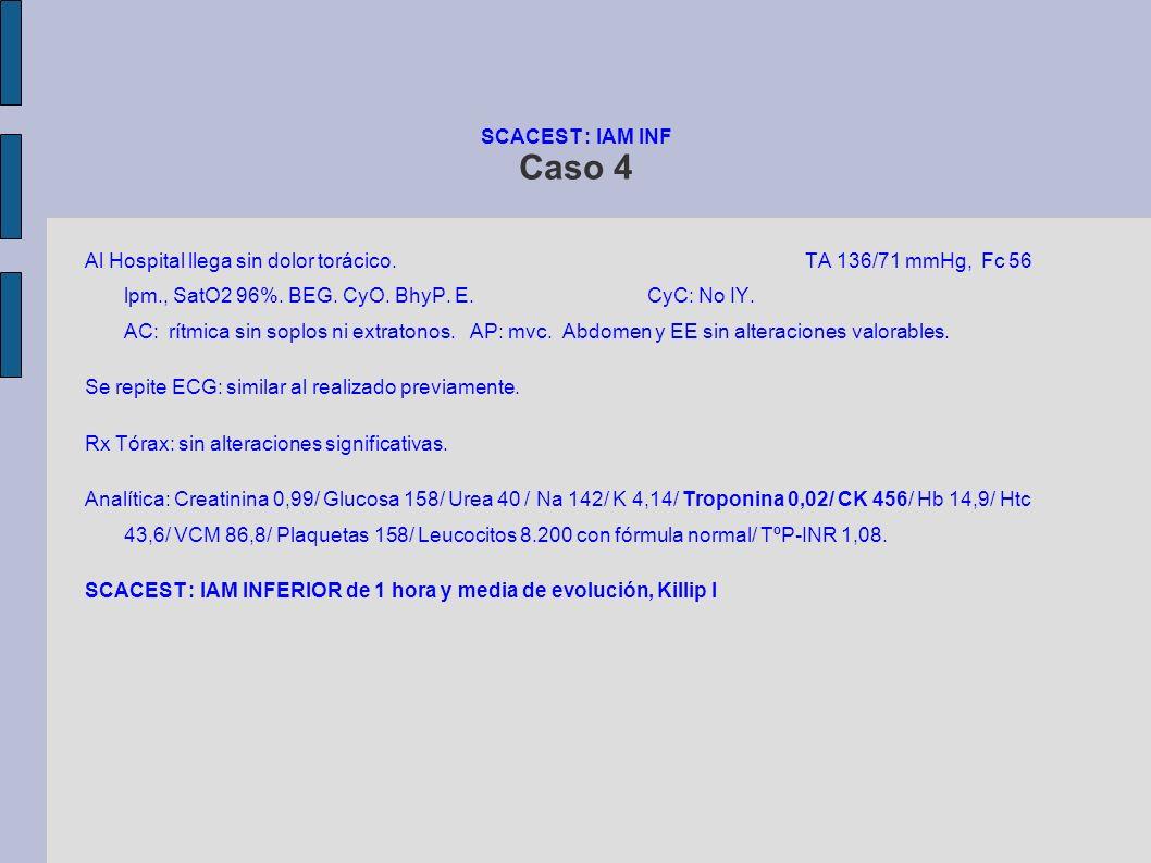 SCACEST : IAM INF Caso 4 Al Hospital llega sin dolor torácico. TA 136/71 mmHg, Fc 56 lpm., SatO2 96%. BEG. CyO. BhyP. E. CyC: No IY. AC: rítmica sin s