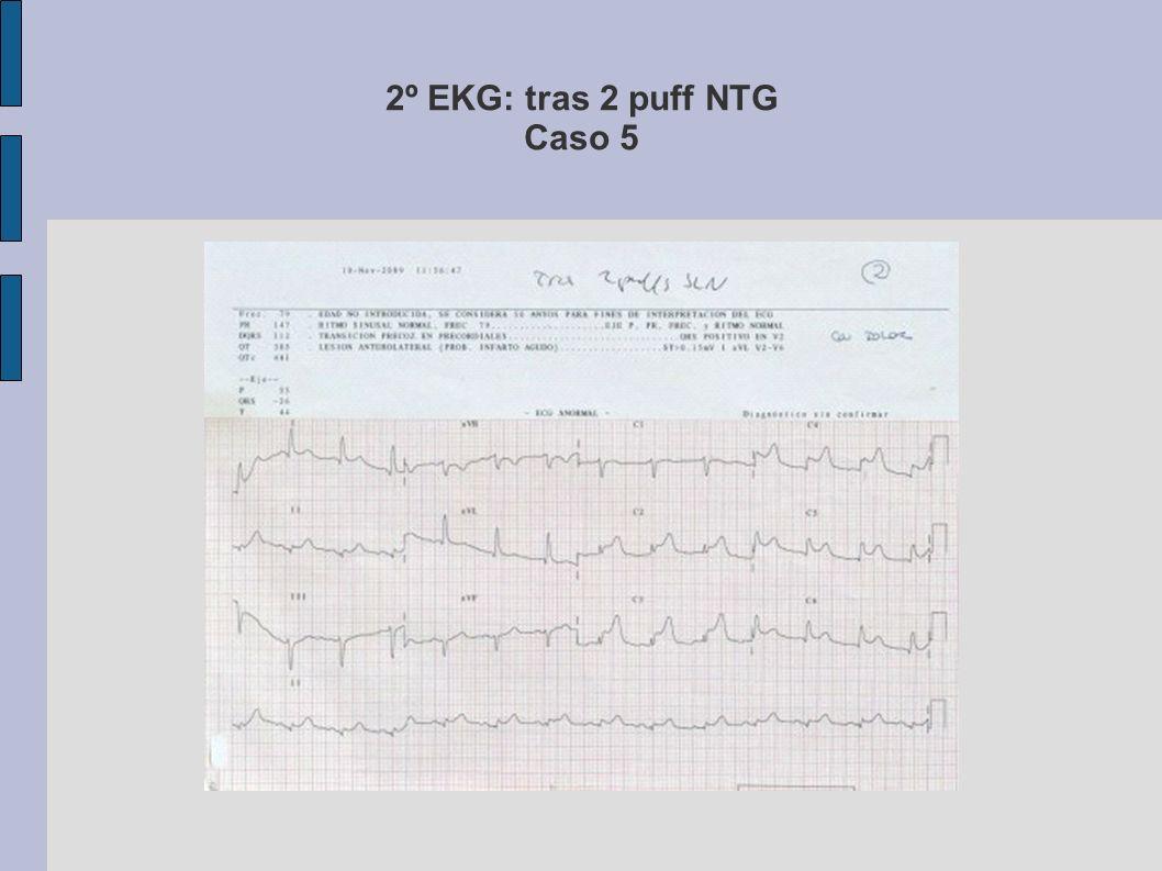 3º EKG: tras fibrinólisis Caso 5 Fibrinolisis con TNK + ENOXAPARINA (Clexane) -> cedió el dolor y notable rectificación del ST.