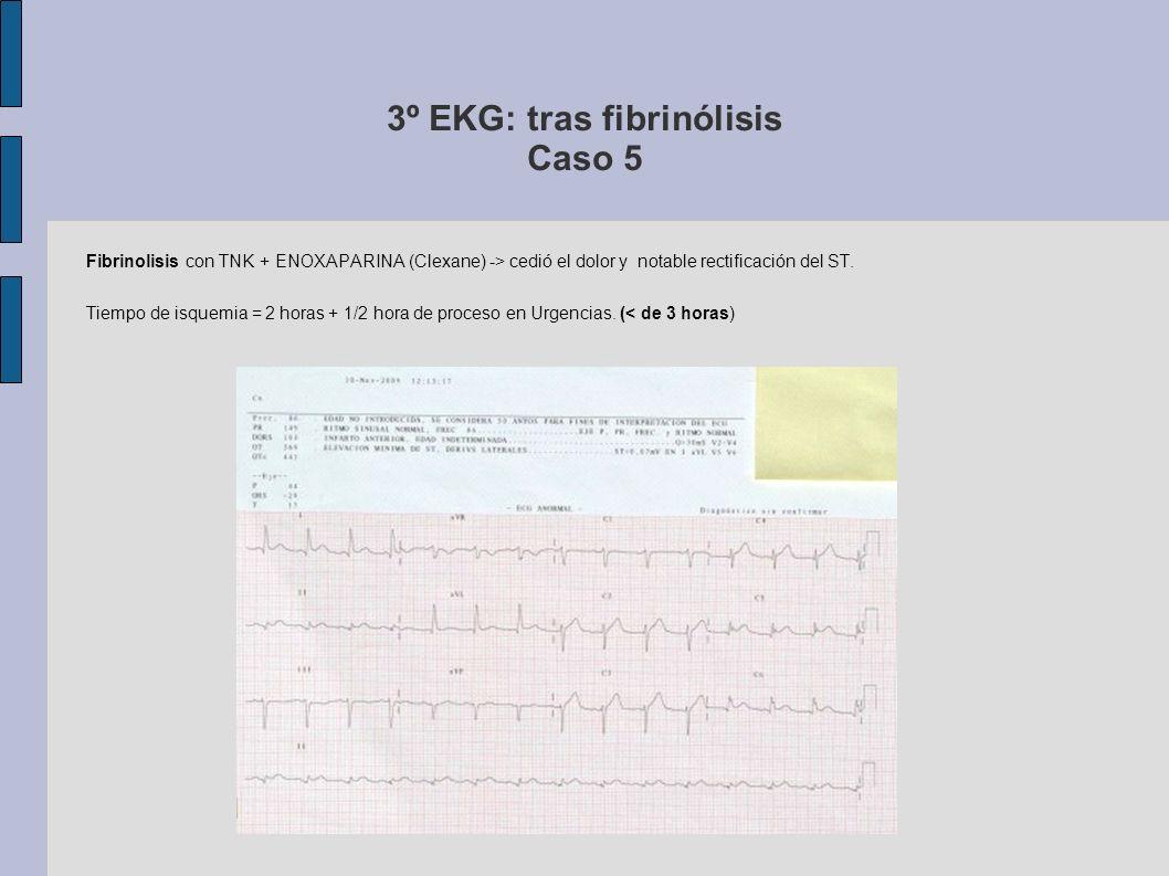 3º EKG: tras fibrinólisis Caso 5 Fibrinolisis con TNK + ENOXAPARINA (Clexane) -> cedió el dolor y notable rectificación del ST. Tiempo de isquemia = 2