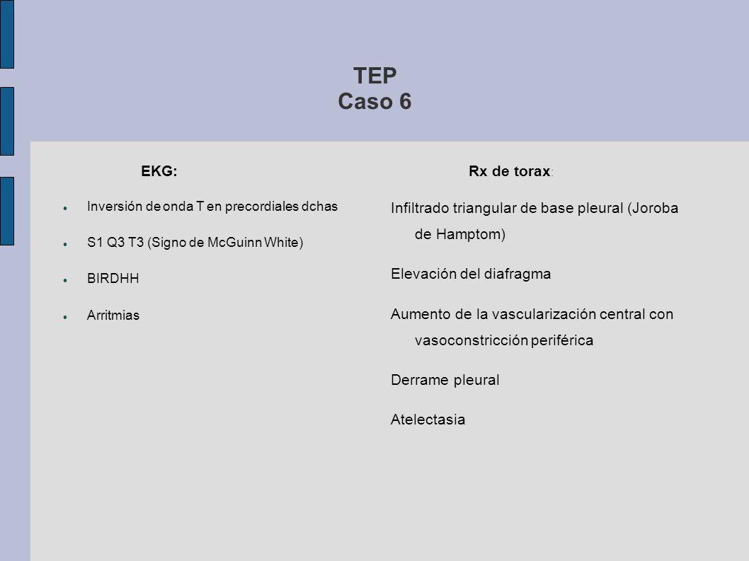 TEP Caso 6 EKG: Inversión de onda T en precordiales dchas S1 Q3 T3 (Signo de McGuinn White) BIRDHH Arritmias Rx de torax : Infiltrado triangular de ba