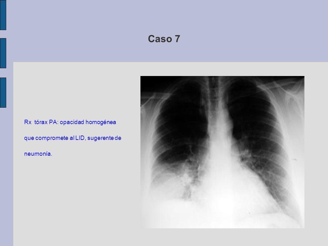 Caso 7 Rx tórax PA: opacidad homogénea que compromete al LID, sugerente de neumonía.