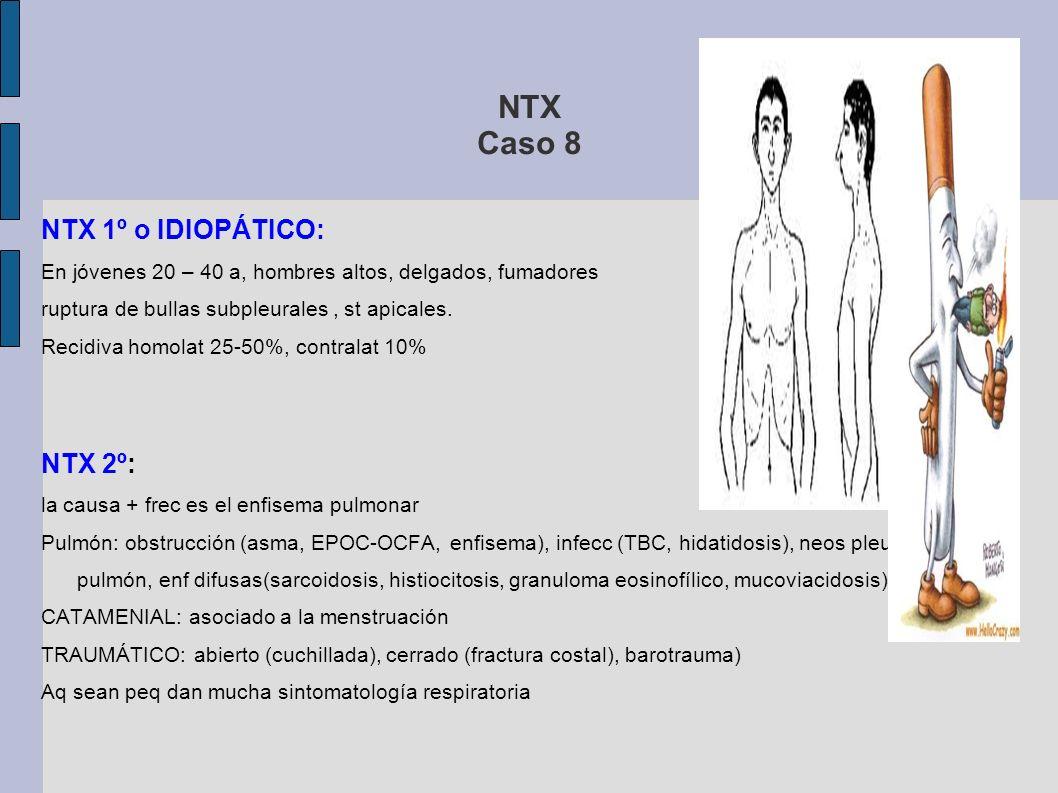NTX Caso 8 NTX < 25% + presenta poca sintomatología = TTO CON REPOSO DOMICILIARIO + CONTROL Rx torax a los 7-10 DÍAS (REABSORCIÓN) INDICACIONES DE TORACOSTOMÍA CON SONDA: Fracaso del reposo domiciliario NTX unilat q afecta a >25% INDICACIONES DE TORACOSTOMÍA ABIERTA con cierre de la vía de escape, resección de bullas, obliteración de la cavidad pleural: 3º EPISODIO DE NTX NTX BILAT FRACASO DE TORACOSTOMÍA CON SONDA (ntx PERSISTE > 1 SEM) NTX 2º
