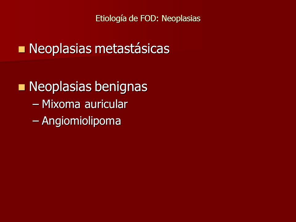Etiología de FOD: Neoplasias Neoplasias metastásicas Neoplasias metastásicas Neoplasias benignas Neoplasias benignas –Mixoma auricular –Angiomiolipoma
