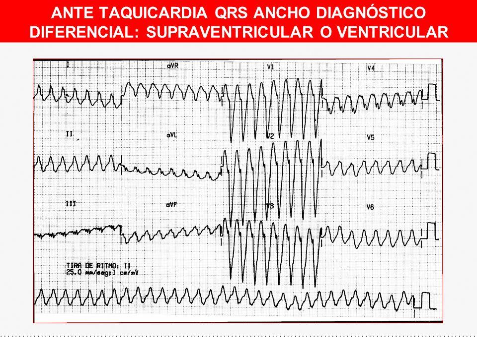 ANTE TAQUICARDIA QRS ANCHO DIAGNÓSTICO DIFERENCIAL: SUPRAVENTRICULAR O VENTRICULAR