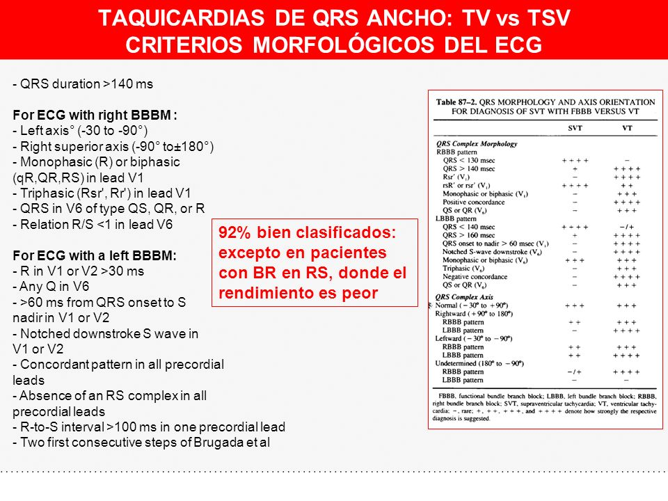 TAQUICARDIAS DE QRS ANCHO: TV vs TSV CRITERIOS MORFOLÓGICOS DEL ECG - QRS duration >140 ms For ECG with right BBBM : - Left axis° (-30 to -90°) - Righ