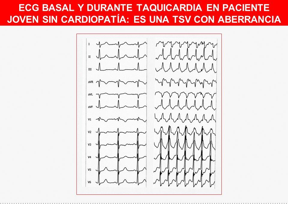 ECG BASAL Y DURANTE TAQUICARDIA EN PACIENTE JOVEN SIN CARDIOPATÍA: ES UNA TSV CON ABERRANCIA