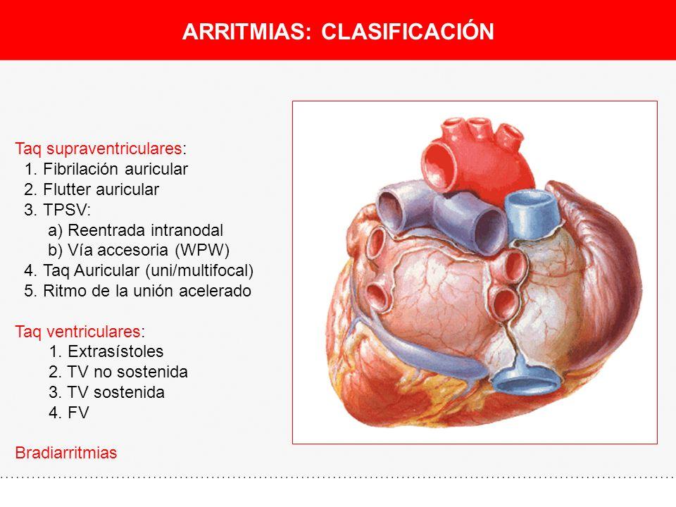 ARRITMIAS: CLASIFICACIÓN Taq supraventriculares: 1. Fibrilación auricular 2. Flutter auricular 3. TPSV: a) Reentrada intranodal b) Vía accesoria (WPW)