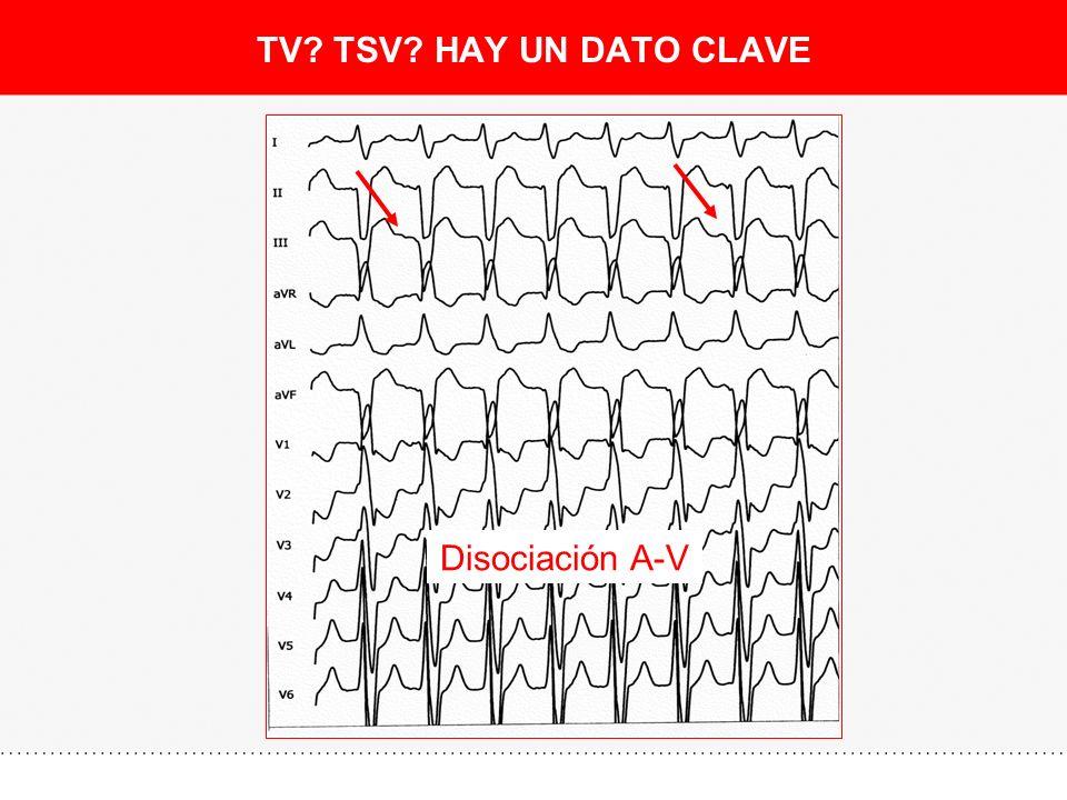 TV? TSV? HAY UN DATO CLAVE Disociación A-V