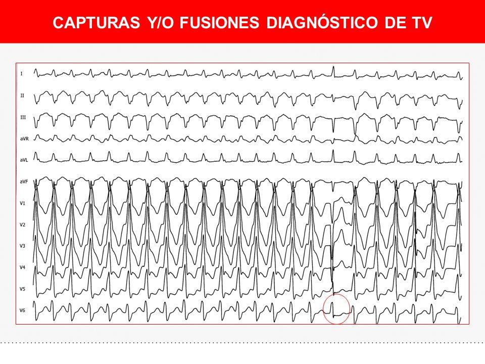 CAPTURAS Y/O FUSIONES DIAGNÓSTICO DE TV