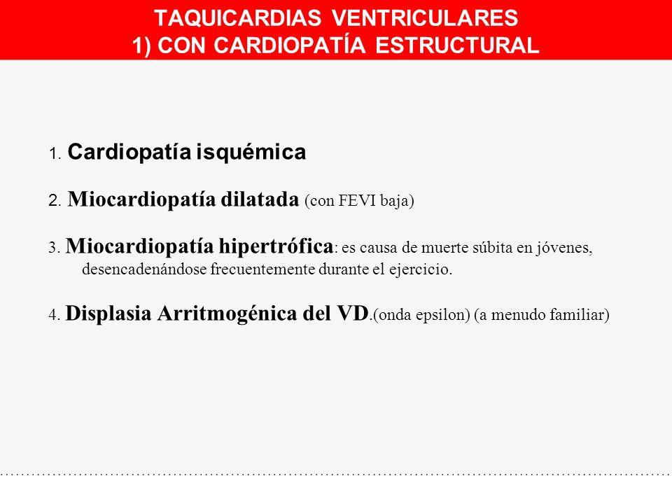 TAQUICARDIAS VENTRICULARES 1) CON CARDIOPATÍA ESTRUCTURAL 1. Cardiopatía isquémica 2. Miocardiopatía dilatada (con FEVI baja) 3. Miocardiopatía hipert