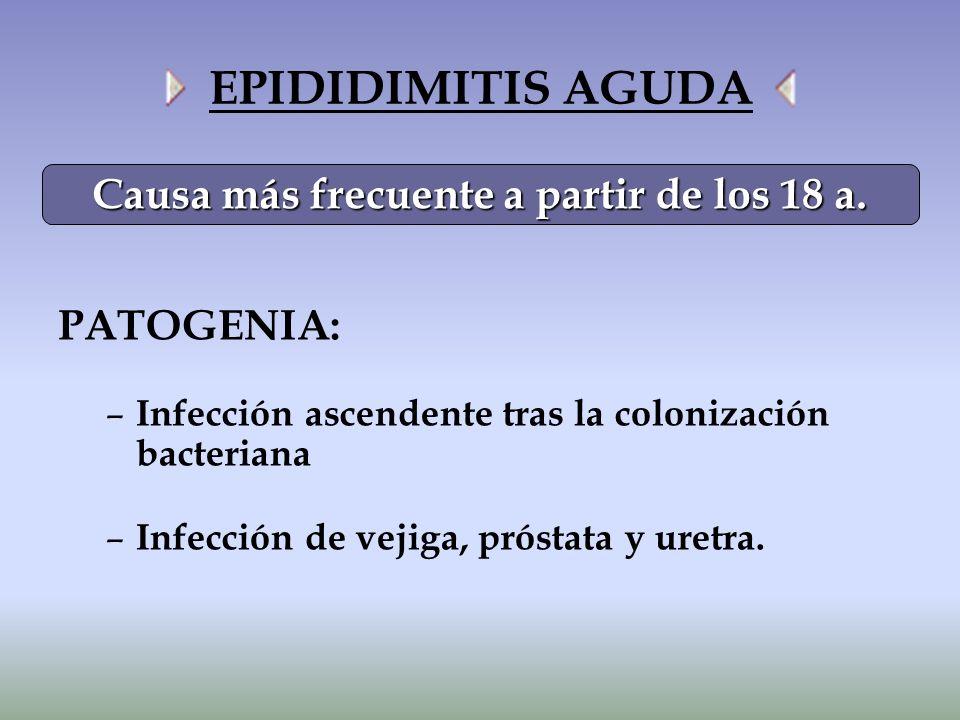 EPIDIDIMITIS AGUDA PATOGENIA: – Infección ascendente tras la colonización bacteriana – Infección de vejiga, próstata y uretra. Causa más frecuente a p