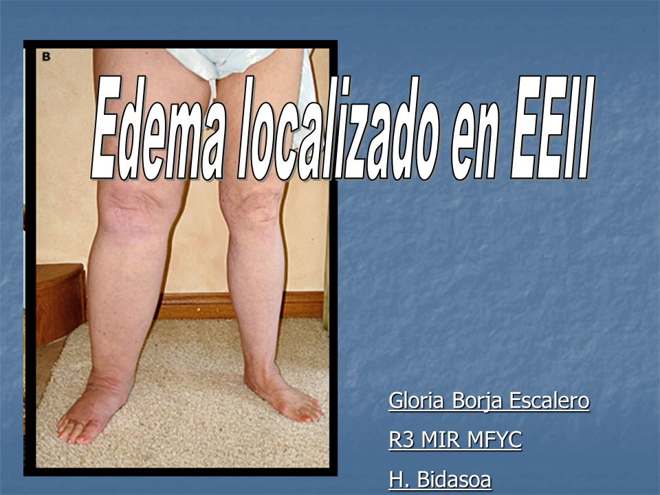 Complicaciones: que se haga crónica linfedema Tratamiento: -reposos relativo con piernas elevadas.