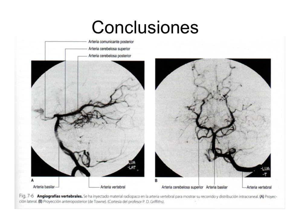 Conclusiones La anamnesis y exploración neurológica nos permiten una aproximación al diagnóstico topográfico y la extensión de la lesion. El resto de