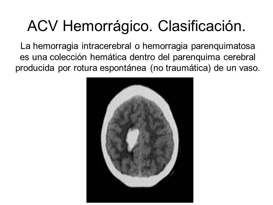 ACV Hemorrágico. Clasificación. La hemorragia intracerebral o hemorragia parenquimatosa es una colección hemática dentro del parenquima cerebral produ