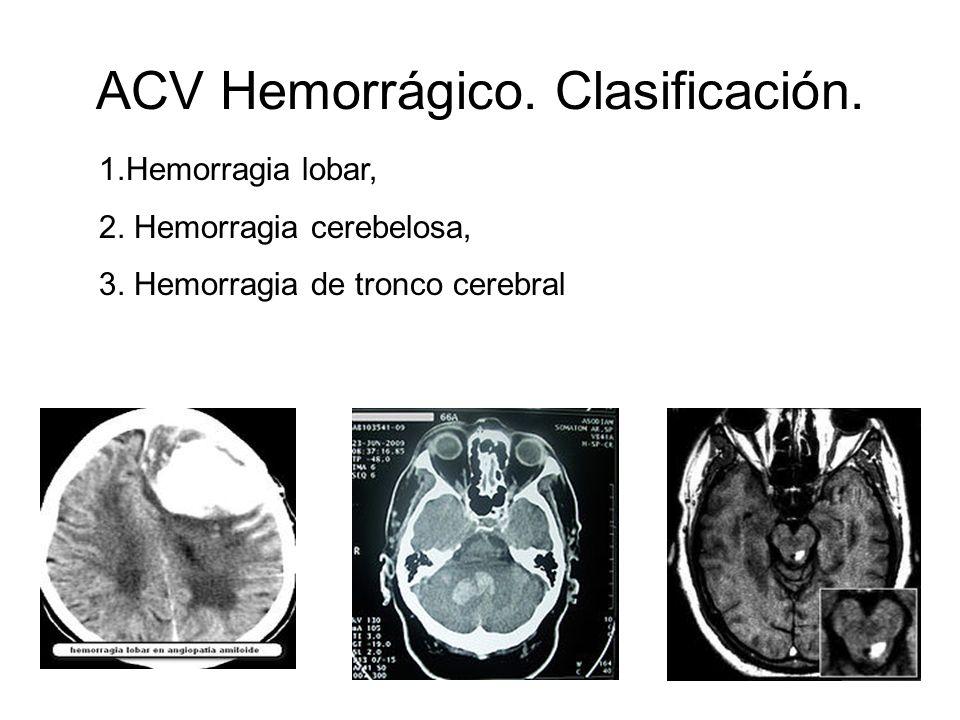 ACV Hemorrágico. Clasificación. 1.Hemorragia lobar, 2. Hemorragia cerebelosa, 3. Hemorragia de tronco cerebral