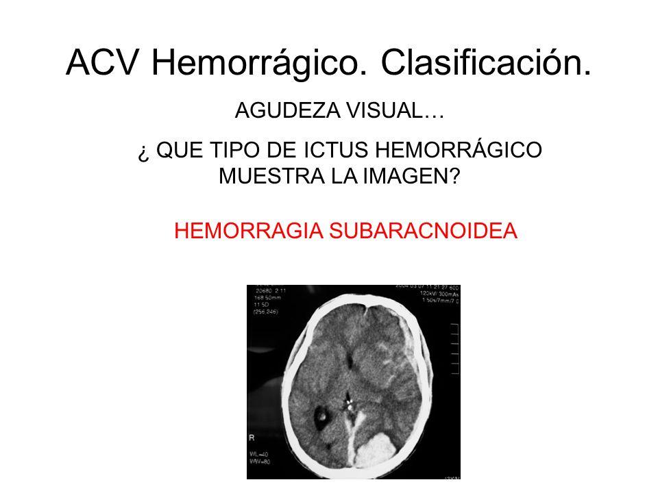 ACV Hemorrágico. Clasificación. AGUDEZA VISUAL… ¿ QUE TIPO DE ICTUS HEMORRÁGICO MUESTRA LA IMAGEN? HEMORRAGIA SUBARACNOIDEA