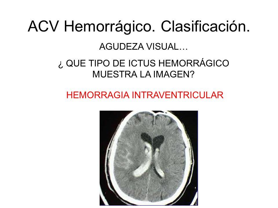ACV Hemorrágico. Clasificación. AGUDEZA VISUAL… ¿ QUE TIPO DE ICTUS HEMORRÁGICO MUESTRA LA IMAGEN? HEMORRAGIA INTRAVENTRICULAR